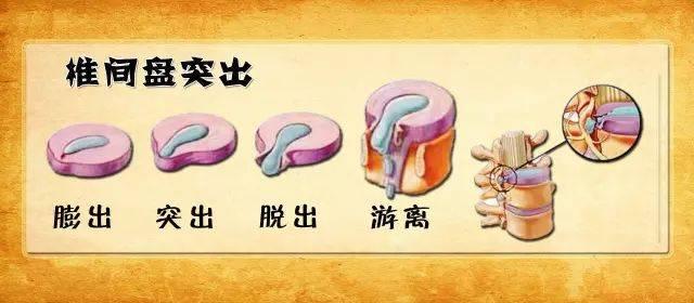 src=http___i.gongxiao8.com_uploads_i_1_3569060606x3828754077_26.jpg&refer=http___i.gongxiao8.jpg
